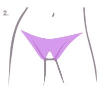 вредна ли депиляция бикини